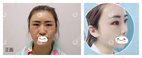 张高 贵整形做半肋鼻综合案例