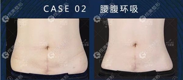 王志军医生做腰腹环吸手术案例
