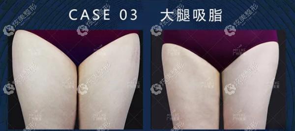 专注吸脂的王志军医生做大腿环吸案例