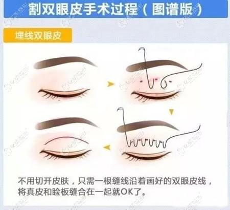长春姬安娣做埋线双眼皮的价格是多少?想改善一单一双