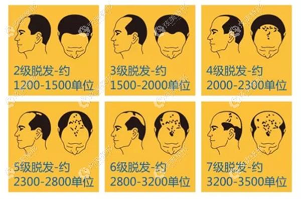 3级脱发需要种植的毛囊单位