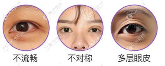 兰州美奥王艳医生修复双眼皮费用是不是挺高的