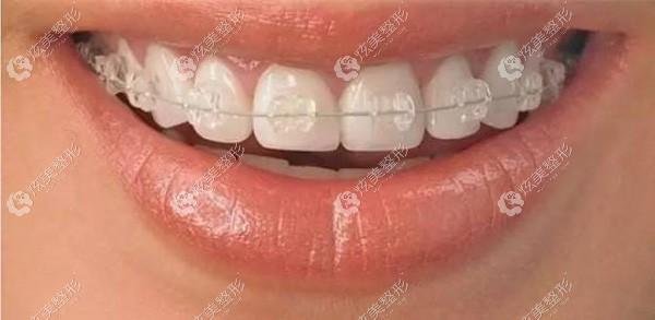 陶瓷自锁托槽整牙的效果