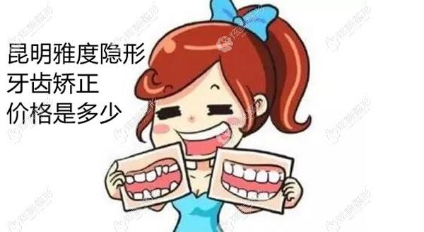 更新昆明雅度口腔隐形矫正牙齿价格,看完你们觉得收费标准如何