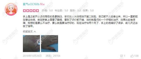 开水烫伤导致色素性疤痕进行治疗