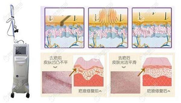 从这些口碑评价中看深圳鹏程整形医院治疗疤痕正不正规