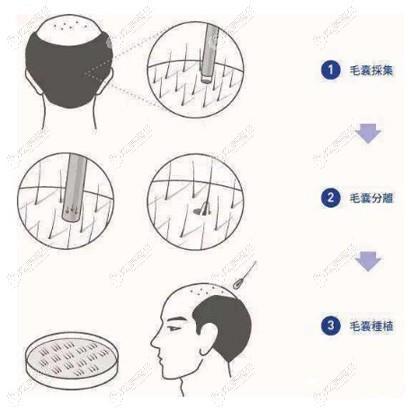 宝石刀植发的手术方式