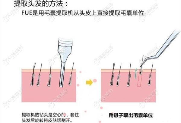 微针植发的手术方式