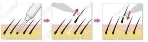 发际线用FUE无痕种植技术