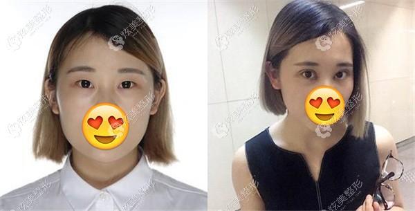 单眼皮做达芬奇美眼术后10天效果