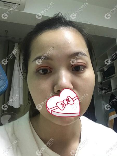 刚做完眼综合术后眼睛红肿