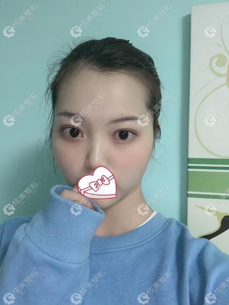 在云南铜雀台做眼综合术后恢复期