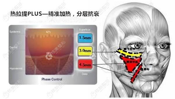 热拉提会针对不同部分分层抗衰