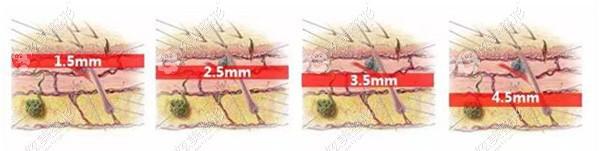 不同版本的热拉提治疗不同的皮肤层次