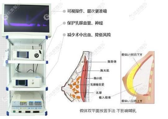 汪福强院长做曼托隆胸手术用内窥镜技术