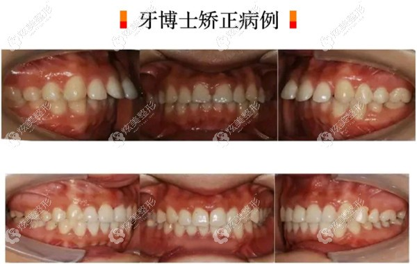 超龙牙博士口腔做瑞速齐隐形牙齿矫正案例