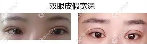 北京魏志香医生眼修复对比图:宽假深的双眼皮2个月就恢复了