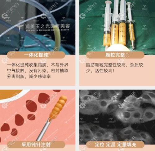 玉之光吸脂的手术原理
