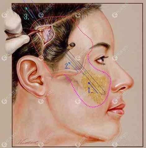 面部筋膜悬吊除皱术的切口小且隐蔽