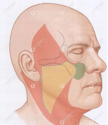 面部筋膜悬吊除皱术前线设计画线