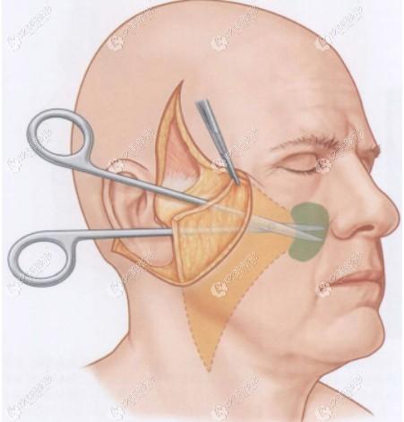 小切口面部筋膜悬吊除皱术祛除多余的皮肤