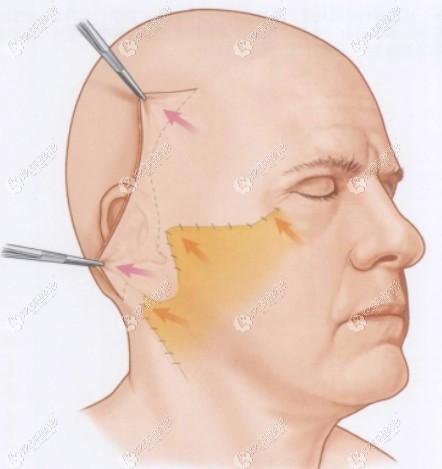 面部筋膜悬吊除皱术将松弛皮肤向上提拉