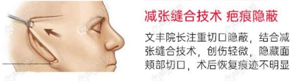 小切口拉皮术的切口位置