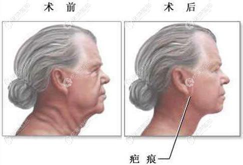 李治浩院长做小切口拉皮手术的疤痕