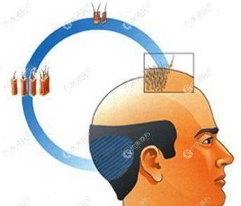 武汉大麦微针植发得多少钱一个毛囊单位?花5000块能植发际线吗