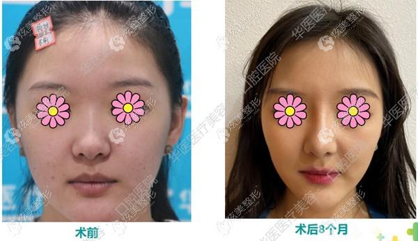 呼和浩特华医整形刘一东医生做肋骨鼻案例