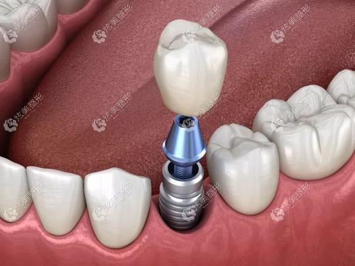 恒好口腔连锁做种植牙价格和基台、牙冠有关