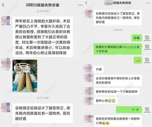到北京达美如艺进行吸脂修复的顾客评价48.jpg