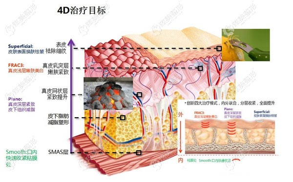 fotona 4Dpro除皱的原理