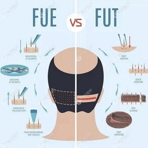 吴氏嘉美的FUE技术和普通的FUT技术对比