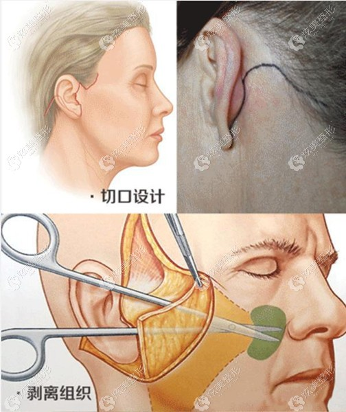 小切口拉皮手术的切口设计