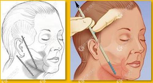 面部拉皮手术做切口1--3cm