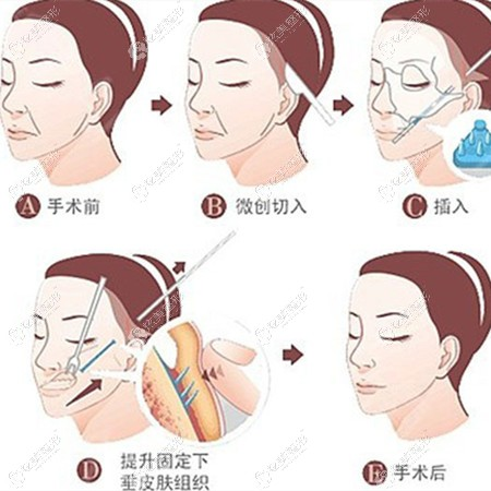 微创小切口拉皮手术的原理