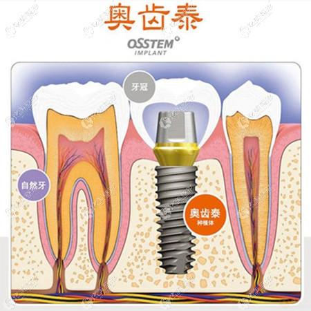 采用奥齿泰种植体种牙的原理