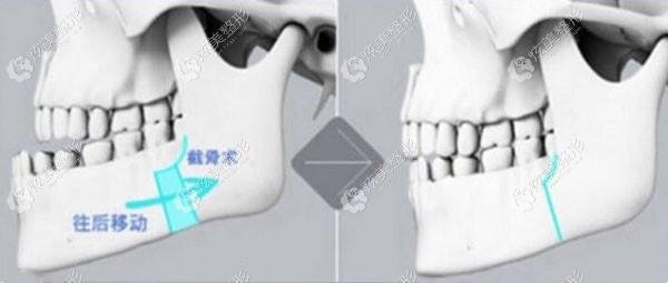 薛主任做正颌手术的原理展示