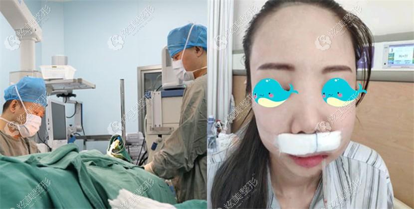 薛教授做正颌术中和术后的效果还不错