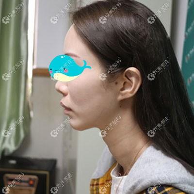 术前上颚前突导致需要做正颌手术