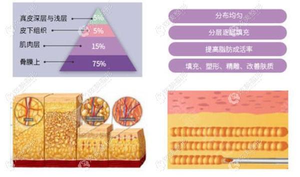 李旭东采用金字塔填充脂肪