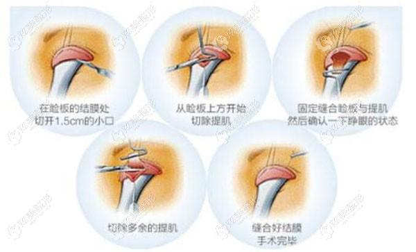 韩国大眼睛整形做眼部提肌手术原理