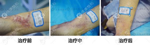 单医生做手腕疤痕修复的恢复图