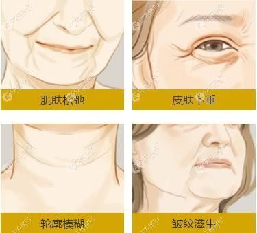 眼部音波提拉手术适合眼周皮肤下垂的人群