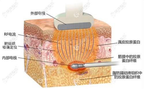 激光溶脂改善填充后出现的硬结情况