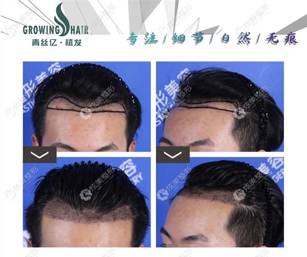 蒋成涛医生做发际线移植案例