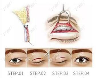 武汉中翰整形眼修复收费标准调整,其实修复宽双眼皮价格并不高