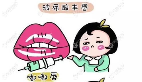 玻尿酸注射丰唇打造嘟嘟唇