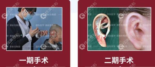 郭教授进行一期和二期手术的方式